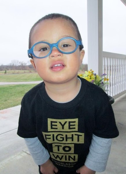 Jayden, 2 years old, is rocking a prosthetic eye (he had an eye removed at 17 months) and glasses.
