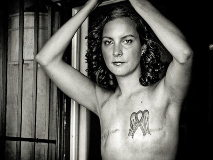 Breast cancer The SCAR Project