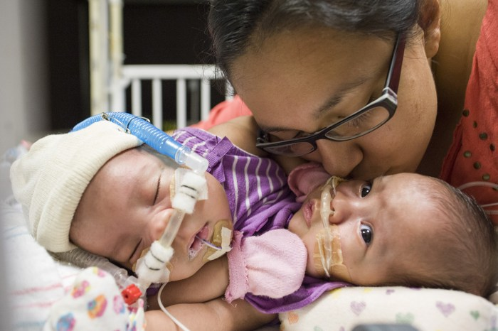 """Mom Elysse Mata says she """"can't wait to hold two individual babies"""" following separation surgery for her conjoined twins, which is expected to be performed in the next few months."""