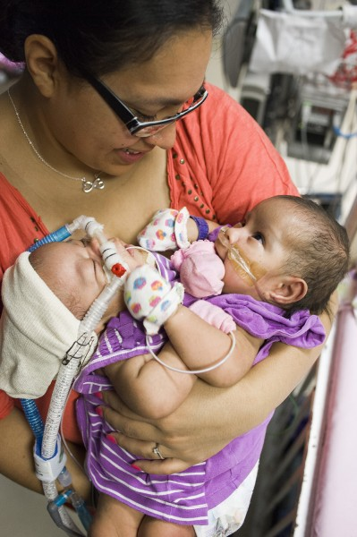 The procedure to separate the twins will involve a 20-to-30-person medical team at the Texas Children's Hospital in Houston.
