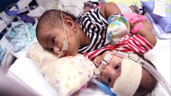 Knatalye Hope and Adeline Faith were born on April 11 sharing a liver, diaphragm, intestines and the lining of the heart known as the pericardial sac.
