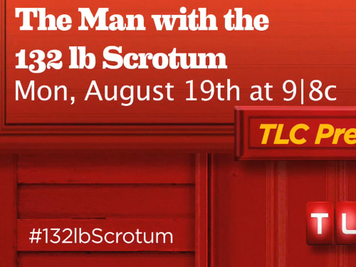 Image: The Man With the 132-Pound Scrotum