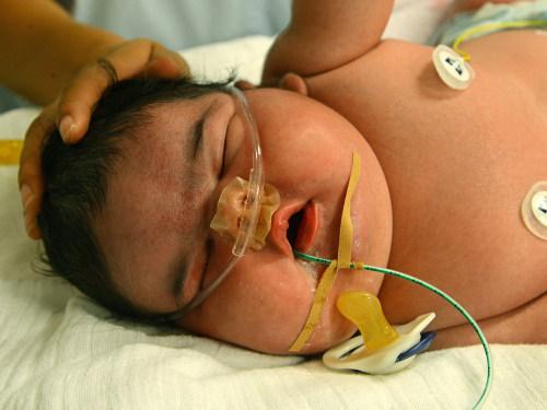 Germany's heaviest newborn, baby girl Jasleen, is in the neonatal intensive care ward of the University Hospital in Leipzig, Germany.