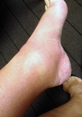 Kathie Lee's swollen foot.