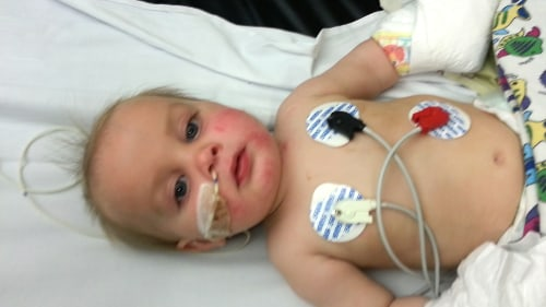 Wyatt Scott was born with congenital trismus.