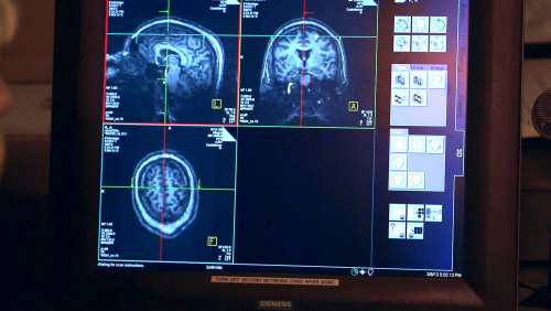 Rock Center ADHD NBC News Brain scan of adults with ADHD
