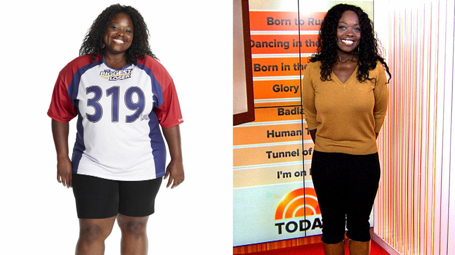 Weight loss surgery cost in usa photo 9