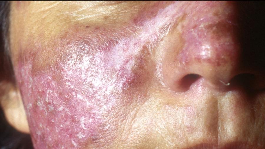 lupus - photo #16