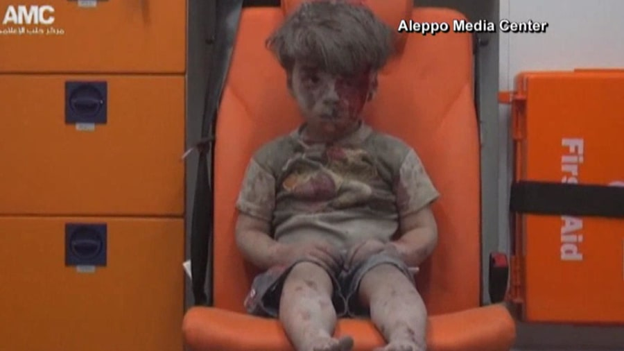 Haunting image of dazed, bloodied Syrian boy provokes global outrage