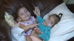 Conjoined Twins Recovering After Successful Separation Surgery