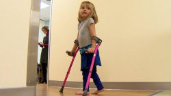 New Drug Helps Little Girl Walk