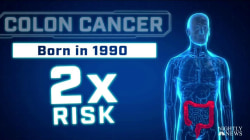 Colorectal Cancers Rates Have Soared in Younger People, Study Shows
