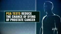 New Guidelines for Prostate Cancer Screenings