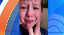 Kid helps brother pull his tooth out with string and a bat
