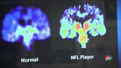Brain Disease in 110 Out of 111 NFL Players' Brains, Study Finds