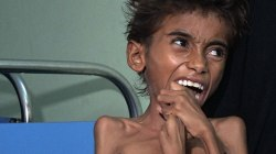 The Face of Suffering: Famine, Cholera Wreak Havoc in War-Torn Yemen