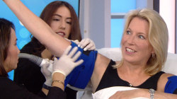 See CoolSculpting to treat flabby arms demonstrated live on TODAY