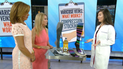 Those unsightly varicose veins: What works (and what doesn't)