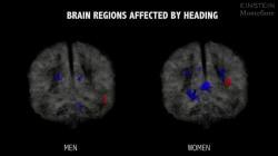 Heading a soccer ball: Female brain vs. male brain