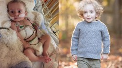 Parents share then-and-now photos of their kids with congenital heart defects