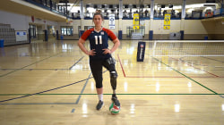 Cancer survivor and world champion volleyball player opens up on her amputation