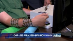 This Quadriplegic Man Regained Hand-Control With a Brain Chip