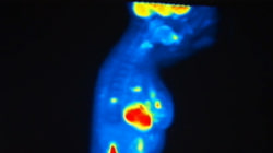 Mammograms: False Positives Or Early Warnings?