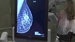 New Mammogram Guidelines Issued