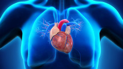 What Is a Silent Heart Attack?