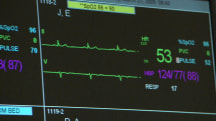 Study: Higher resting heart rate could indicate problems