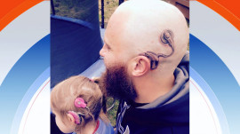 Father gets tattoo to support daughter with cochlear implant