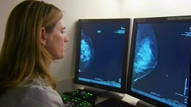 Do false-positive mammograms increase your risk of breast cancer?