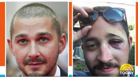 Shia LaBeouf calls lookalike who got punched in the face