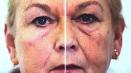 Facelift in a bottle: Is it too good to be true?