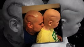 Dad gets tattoo to match son's cancer scar