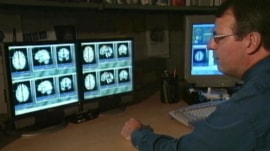 Exercise, healthy lifestyle could help prevent Alzheimer's, study says
