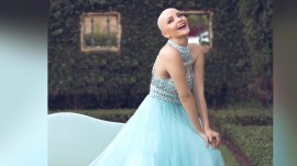 Teen's princess-themed photo shoot proves bald is beautiful