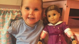 Quadruple amputee toddler gets custom, look-alike doll