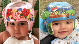 This artist turns babies' medical helmets into works of art