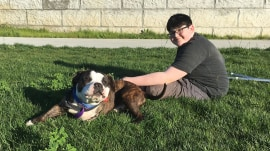 After losing leg to cancer, boy finds special friendship in 3-legged dog