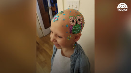 Girl with alopecia decorates her head for crazy hair day