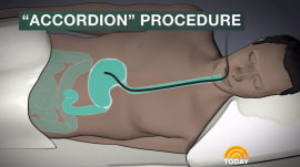 New 'accordion' procedure could help people lose 40 pounds without surgery