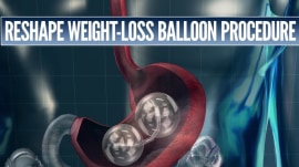 FDA investigates deaths connected to certain weight-loss balloons
