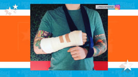 Ed Sheeran gives update on his bike accident injury