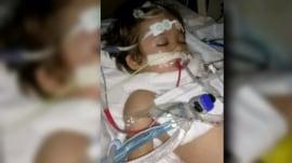 Boy undergoes experimental treatment for rabies after bat bite