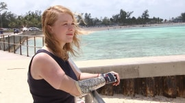 This woman survived a shark attack: 'He had my whole arm in his mouth'