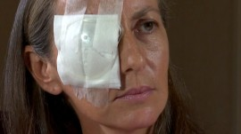 Woman whose 'eye exploded' after hit by golf ball at Ryder Cup speaks out