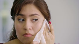 Women open up about struggling with adult acne