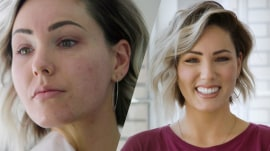 Adult acne: How 5 women control their breakouts