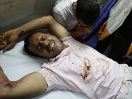 Image: A wounded man receives treatment at al-Shifa hospital in Gaza City